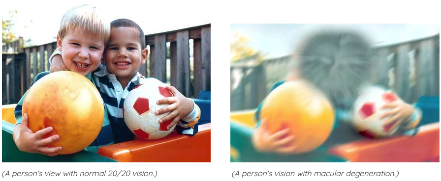 Simulation showing before and after viewpoints of someone affected by macular degeneration. The subjects are two young male boys smiling next to each other.